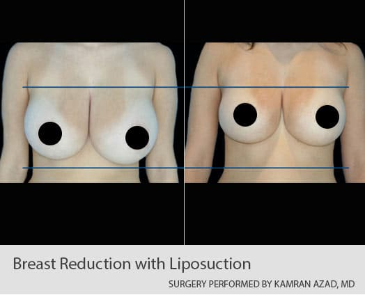 Breast reduction with liposuction