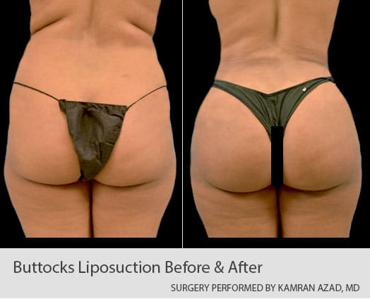 reshaping the contour of a patient with liposuction
