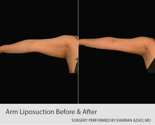 Liposuction of female arms