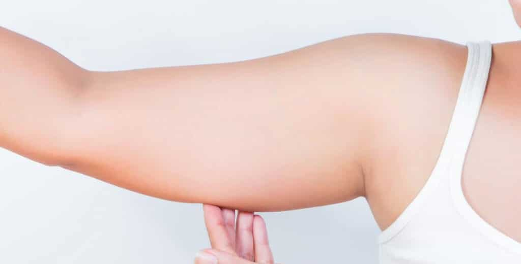 Female candidate for arm liposuction